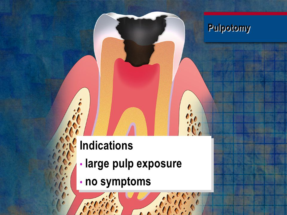 Indications large pulp exposure no symptoms Pulpotomy