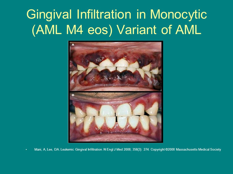 Gingival Infiltration in Monocytic (AML M4 eos) Variant of AML