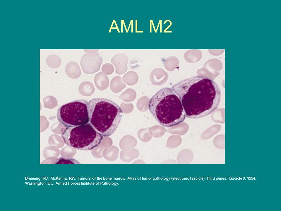 AML M2