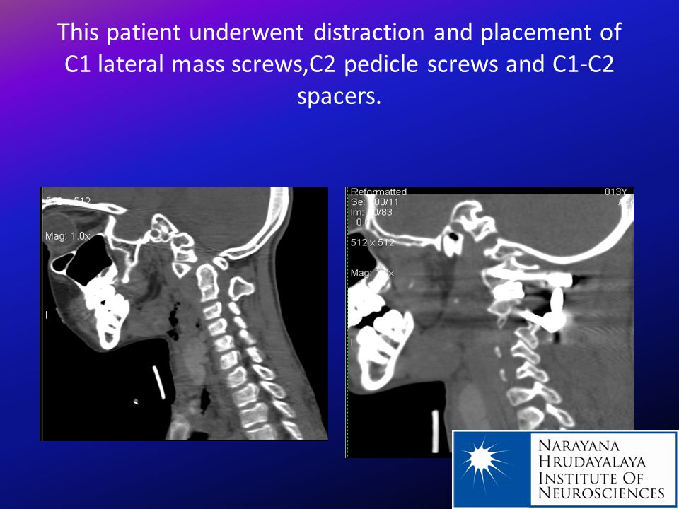 This patient underwent distraction and placement of C1 lateral mass screws,C2 pedicle screws and C1-C2 spacers.