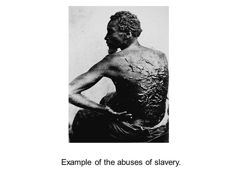 Example of the abuses of slavery.