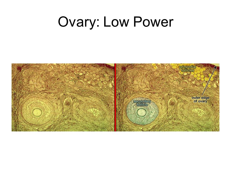 Ovary: Low Power