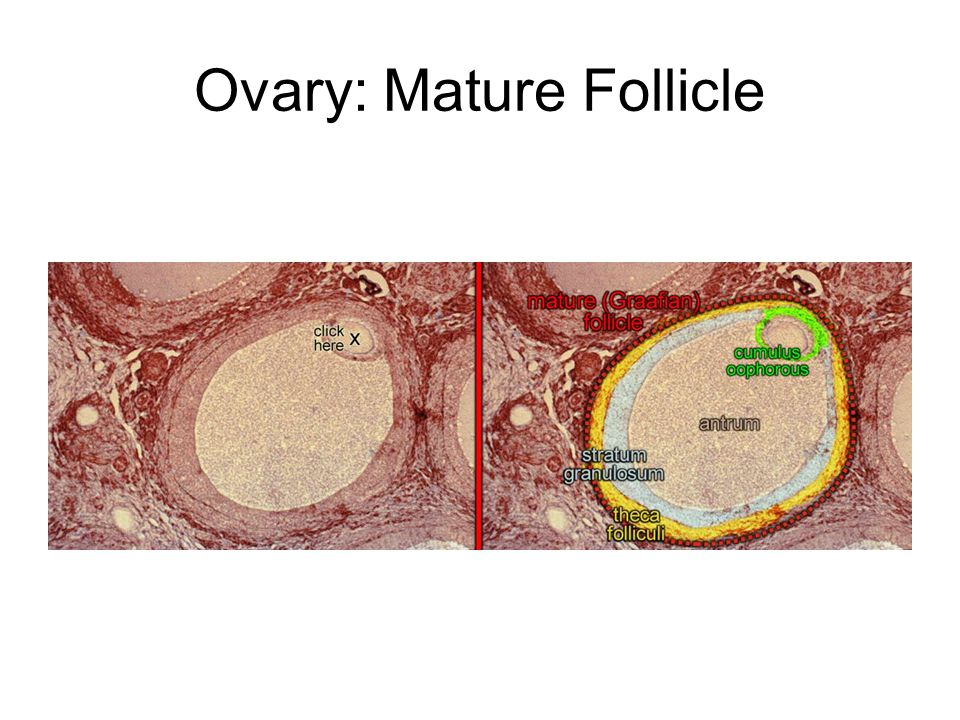 Ovary: Mature Follicle