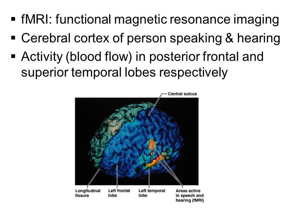 fMRI: functional magnetic resonance imaging