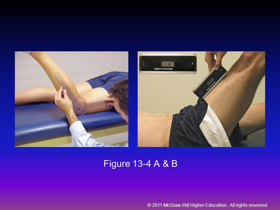 Figure 13-4 A & B