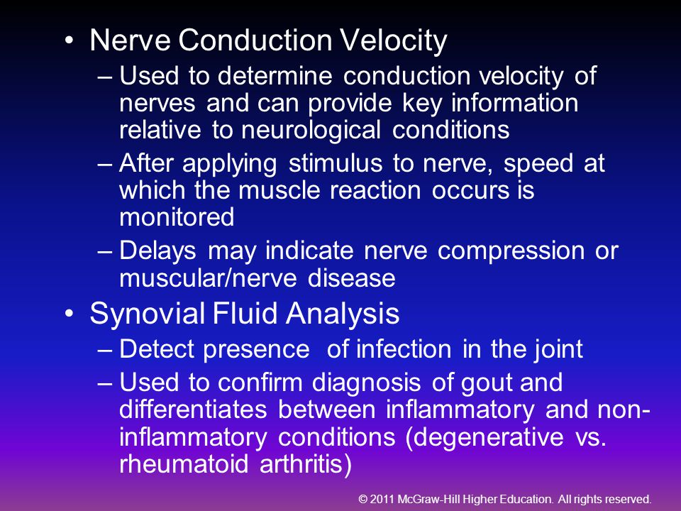 Nerve Conduction Velocity