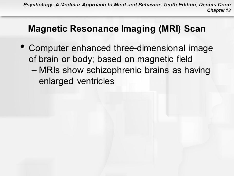 Magnetic Resonance Imaging (MRI) Scan
