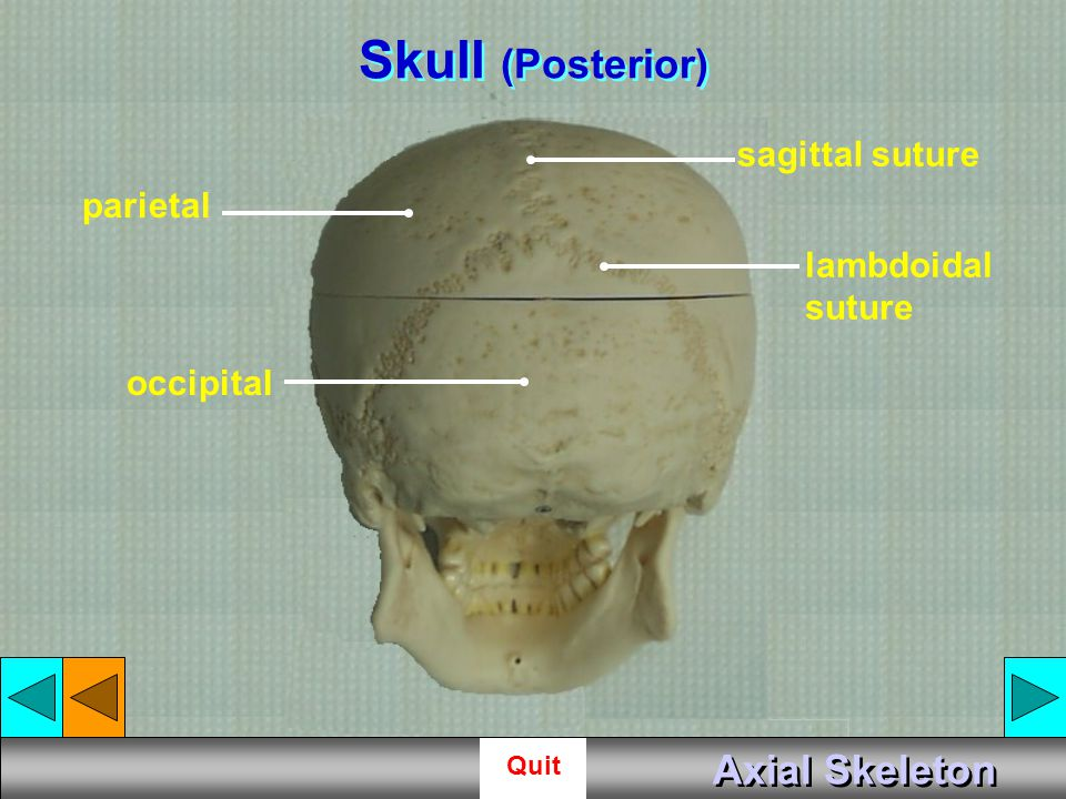 Skull (Posterior) Axial Skeleton sagittal suture parietal lambdoidal