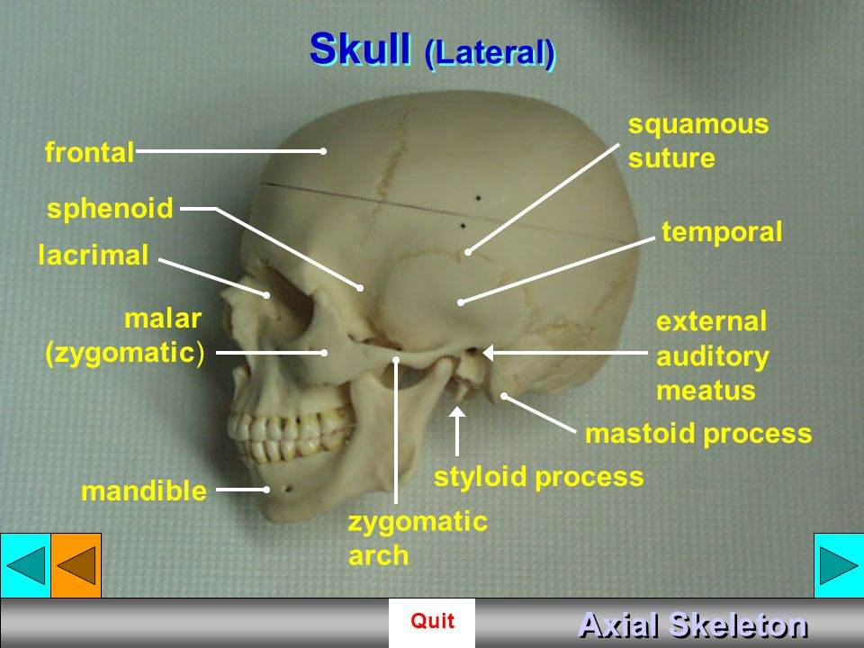 Skull (Lateral) Axial Skeleton squamous suture frontal sphenoid