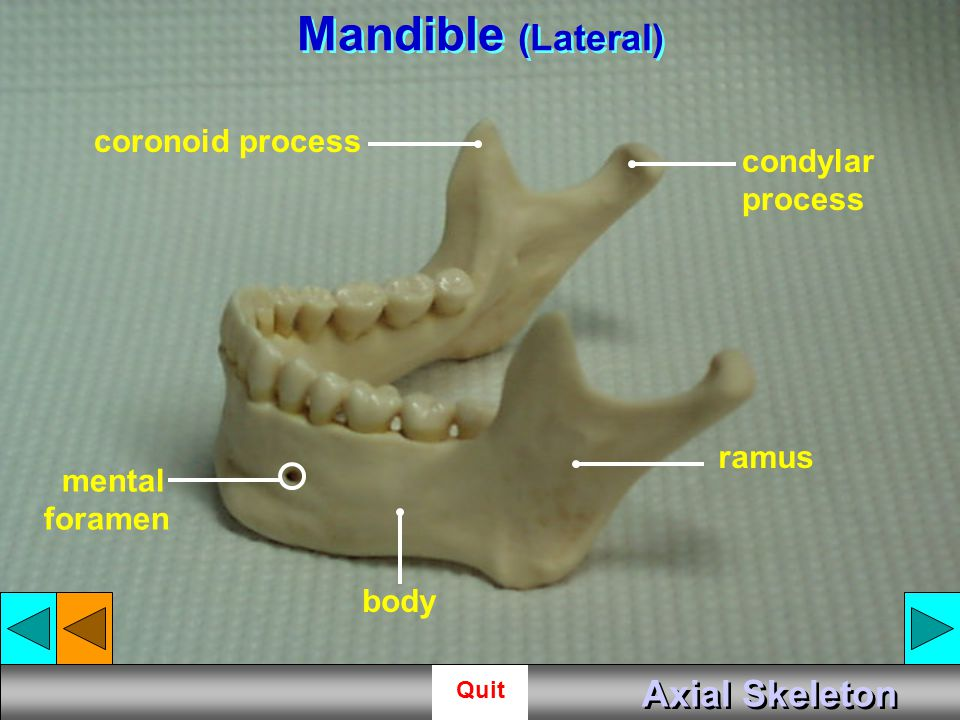 Mandible (Lateral) Axial Skeleton coronoid process condylar process