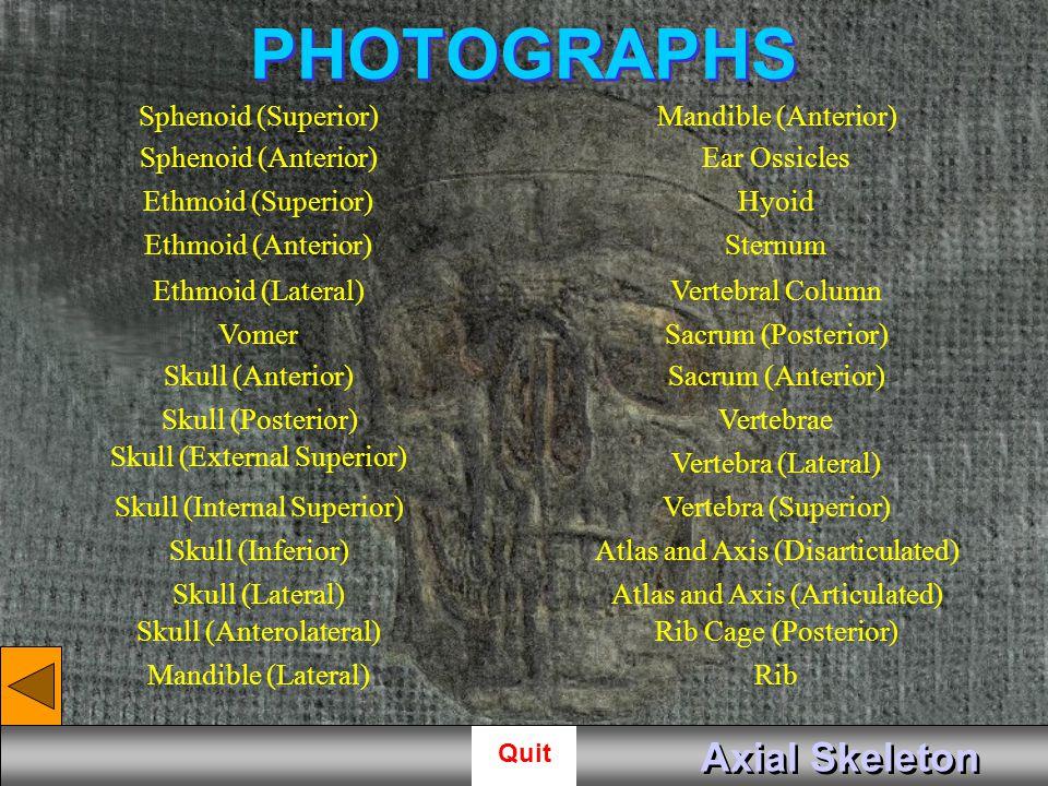 PHOTOGRAPHS Axial Skeleton Sphenoid (Superior) Mandible (Anterior)