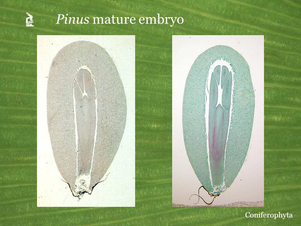 A Pinus mature embryo Coniferophyta