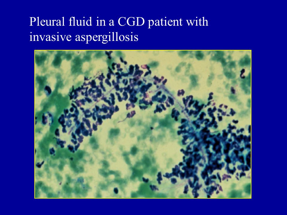 Pleural fluid in a CGD patient with invasive aspergillosis