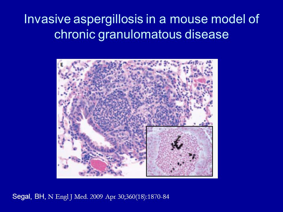 Invasive aspergillosis in a mouse model of chronic granulomatous disease