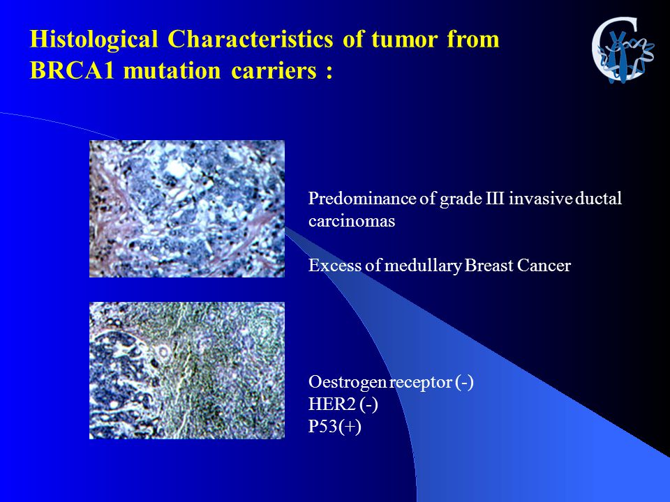 Histological Characteristics of tumor from BRCA1 mutation carriers :