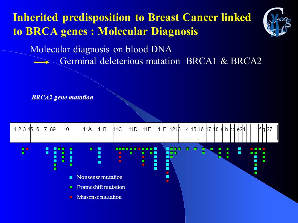 Inherited predisposition to Breast Cancer linked to BRCA genes : Molecular Diagnosis