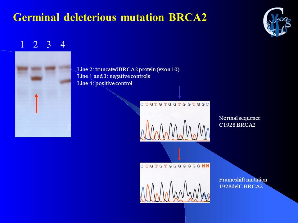 Germinal deleterious mutation BRCA2