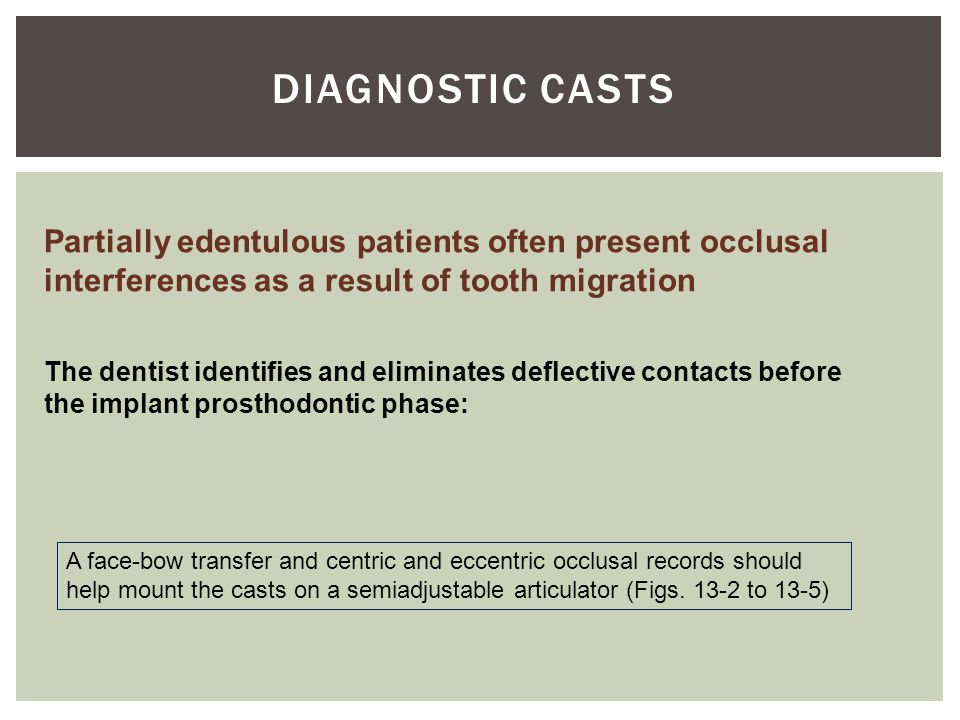 DIAGNOSTIC CASTS Partially edentulous patients often present occlusal interferences as a result of tooth migration.