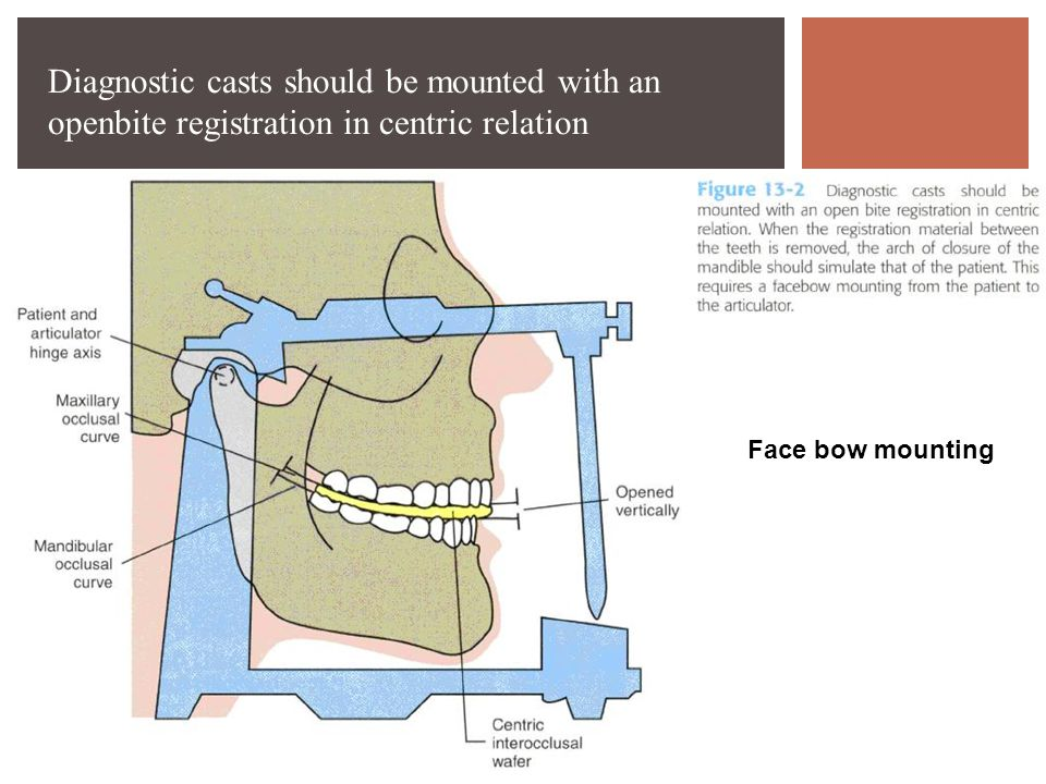 Diagnostic casts should be mounted with an openbite registration in centric relation