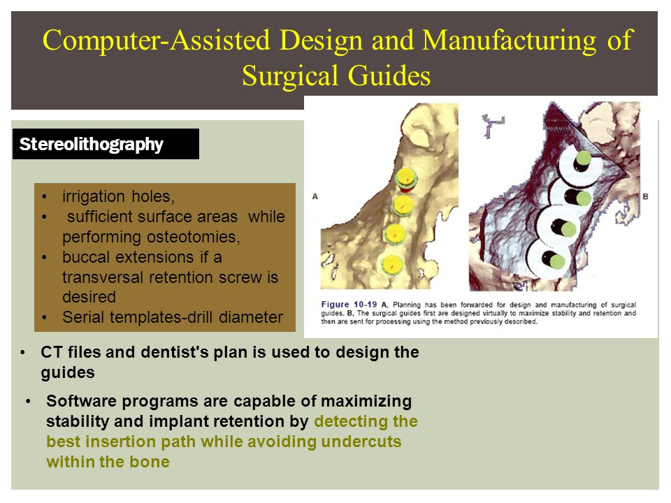 Computer-Assisted Design and Manufacturing of Surgical Guides