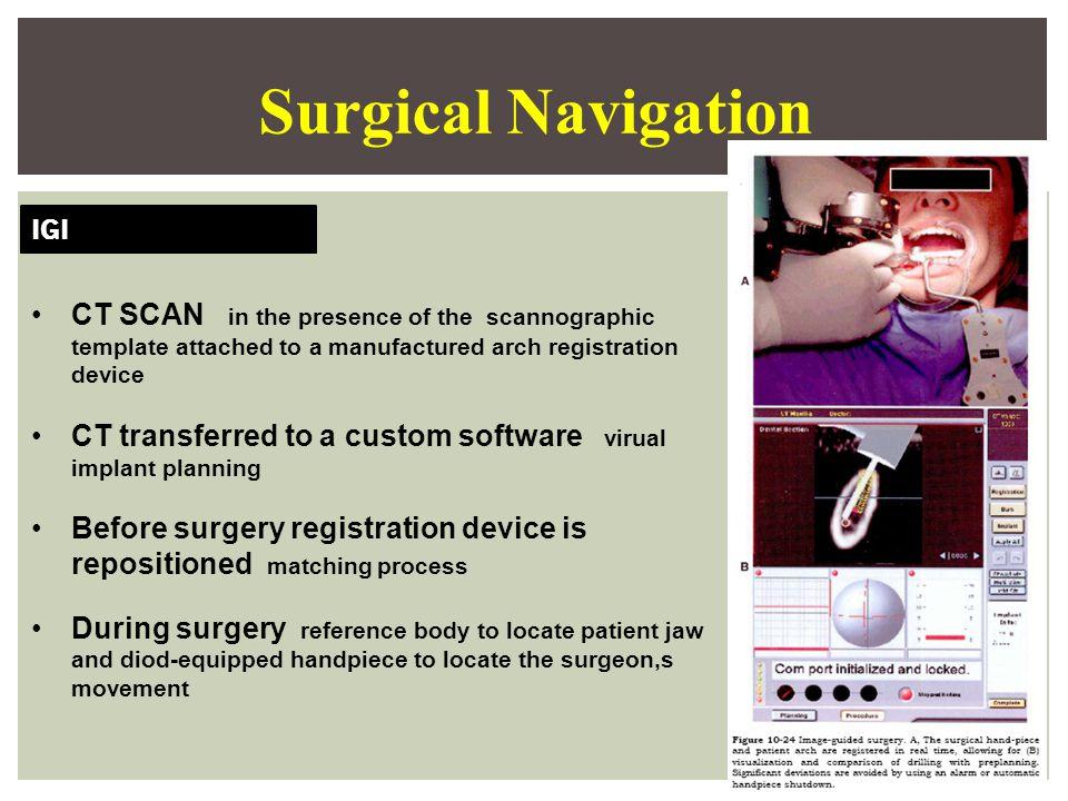 Surgical Navigation IGI