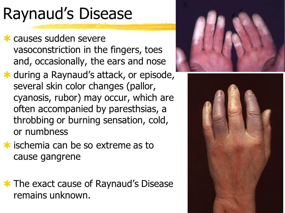 Raynaud's Disease causes sudden severe vasoconstriction in the fingers, toes and, occasionally, the ears and nose.