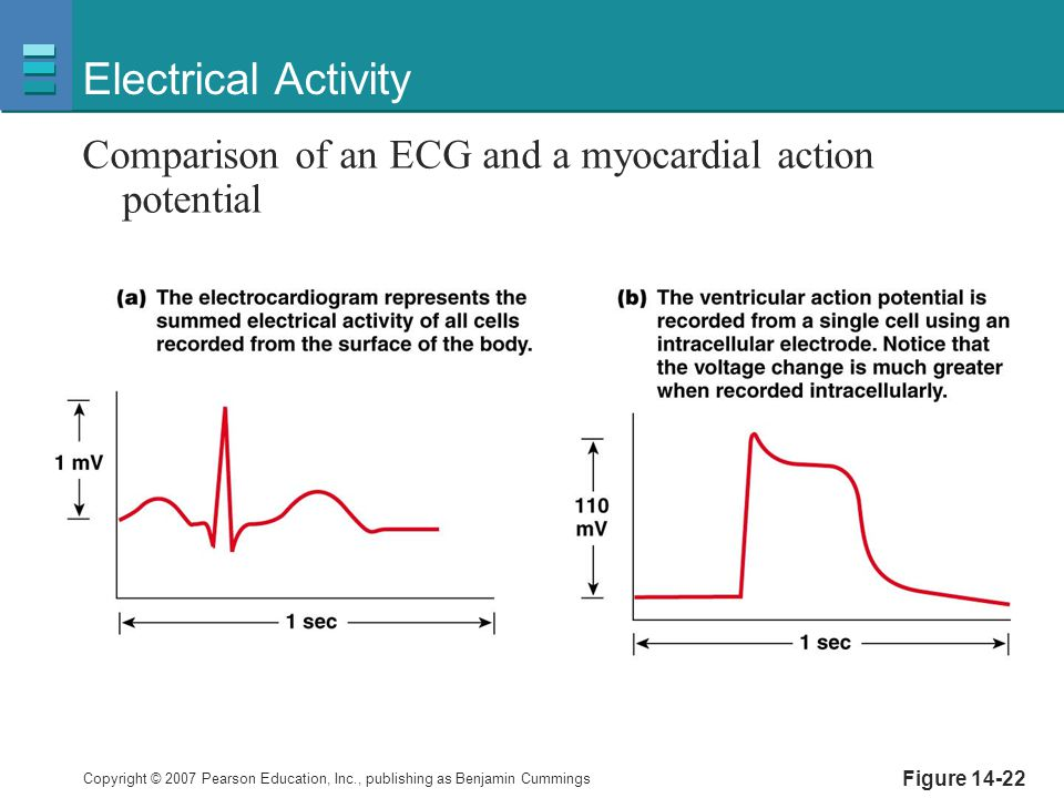 Electrical Activity Comparison of an ECG and a myocardial action potential Figure 14-22