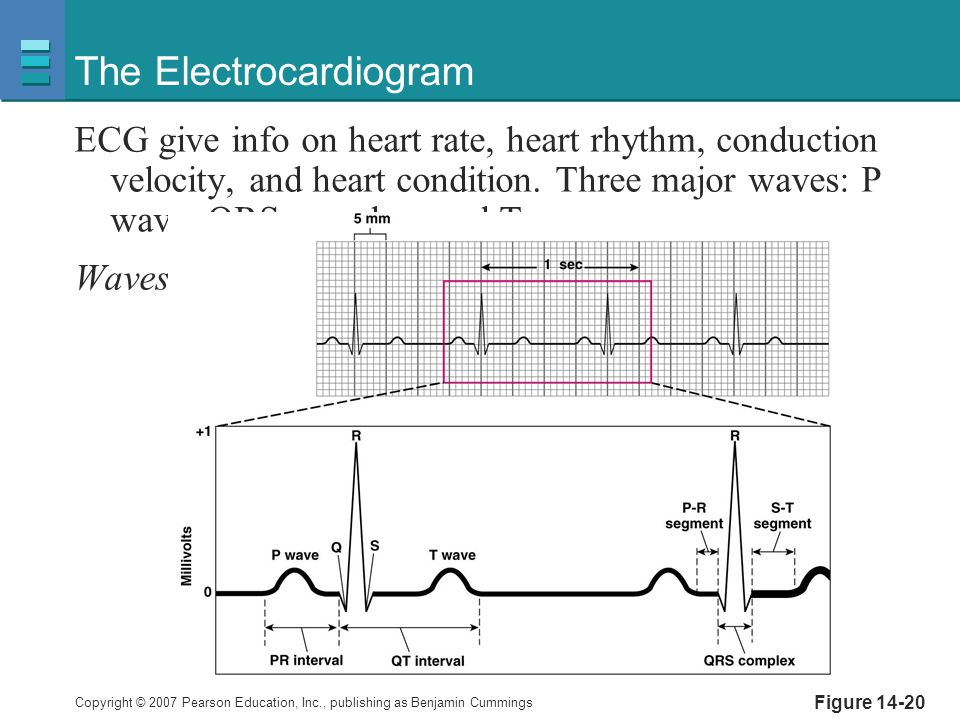 The Electrocardiogram