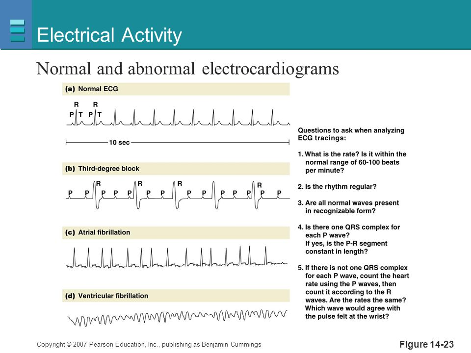 Electrical Activity Normal and abnormal electrocardiograms