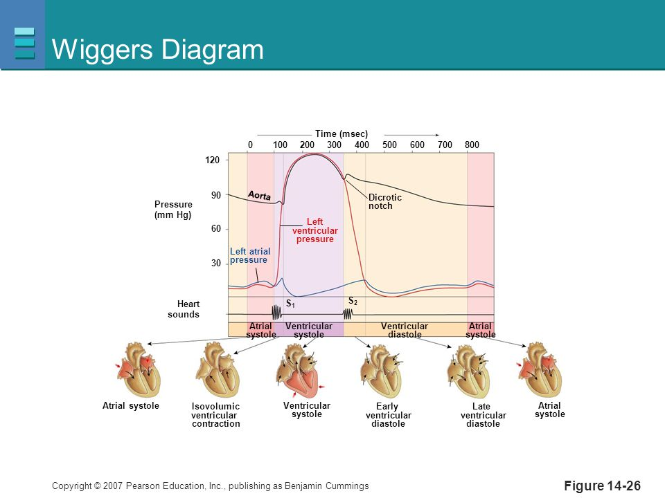 Wiggers Diagram Figure 14-26 Pressure (mm Hg) Heart sounds Dicrotic