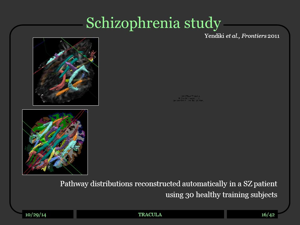Schizophrenia study Yendiki et al., Frontiers 2011. Reconstruct pathways in 34 SZ patients and 23 healthy controls with.
