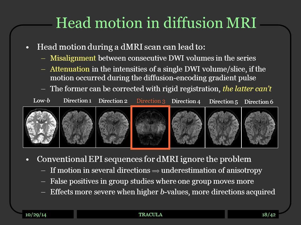 Motion in a dMRI group study