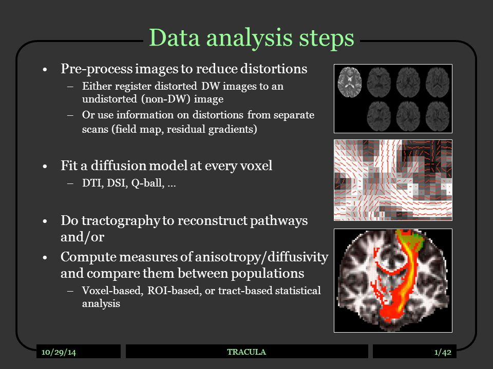 Tractography studies Exploratory tractography: