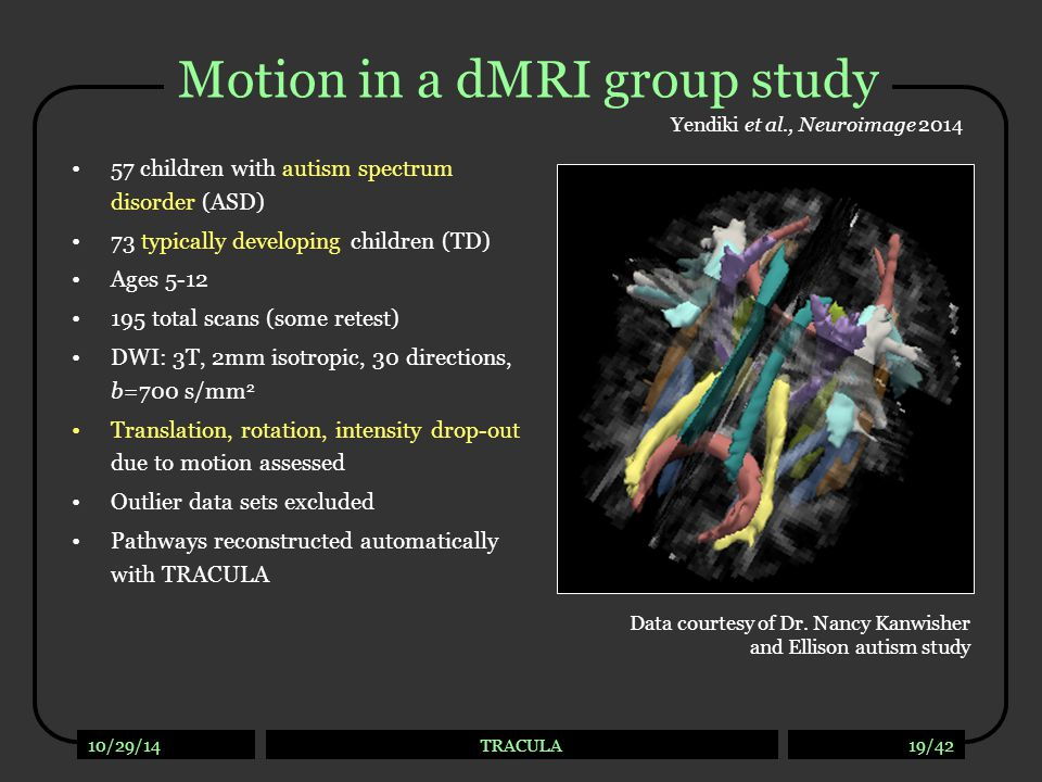 ASD vs. TD Yendiki et al., Neuroimage 2014. Differences in dMRI measures between groups with low differences in head motion.
