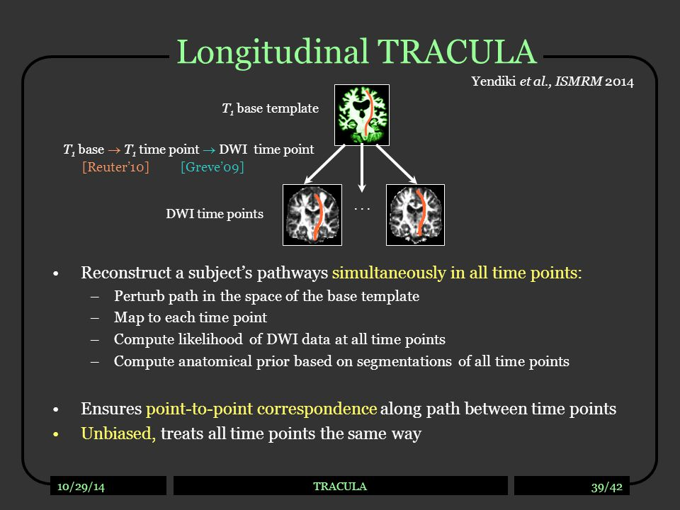 Longitudinal TRACULA: Sensitivity