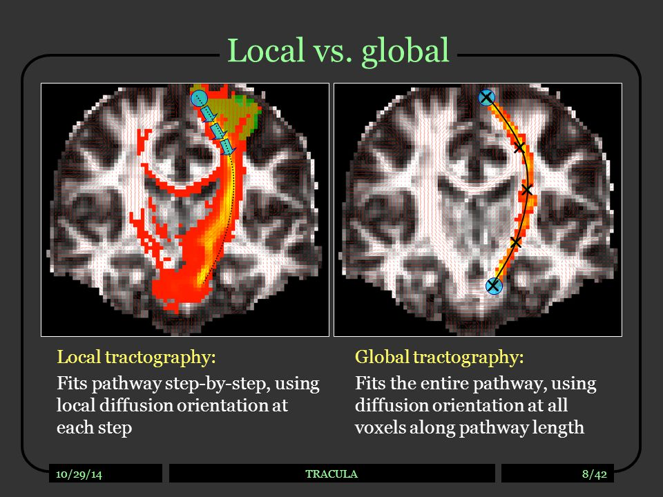 Local tractography Best suited for exploratory study of connections