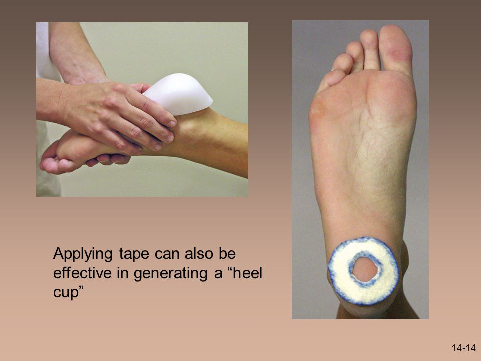 Applying tape can also be effective in generating a heel cup