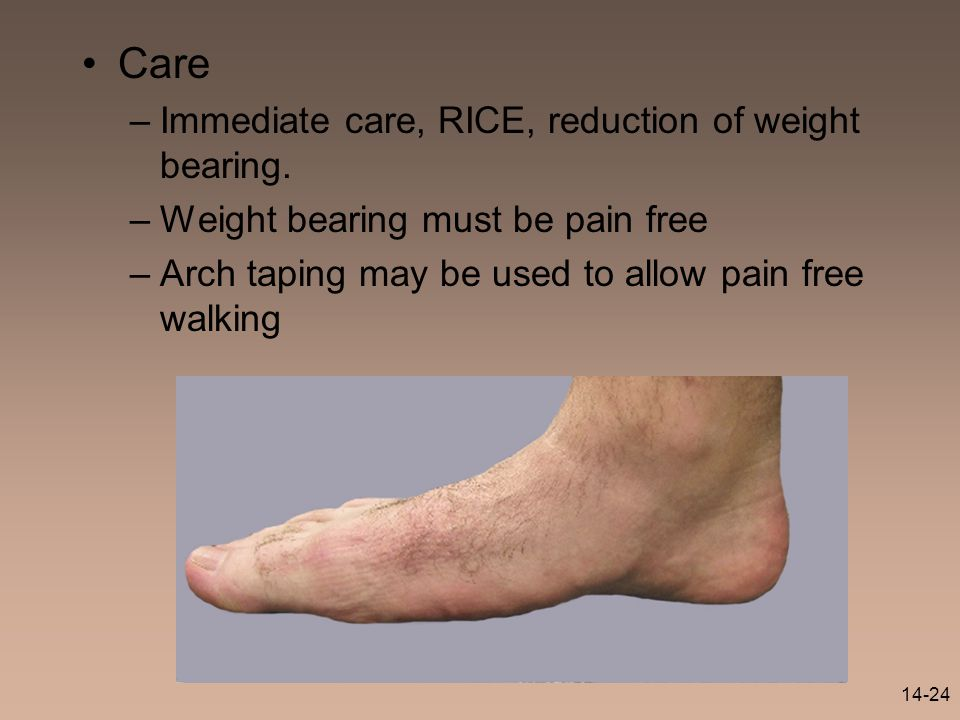 Care Immediate care, RICE, reduction of weight bearing.