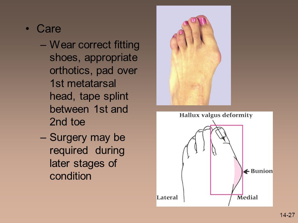 Care Wear correct fitting shoes, appropriate orthotics, pad over 1st metatarsal head, tape splint between 1st and 2nd toe.