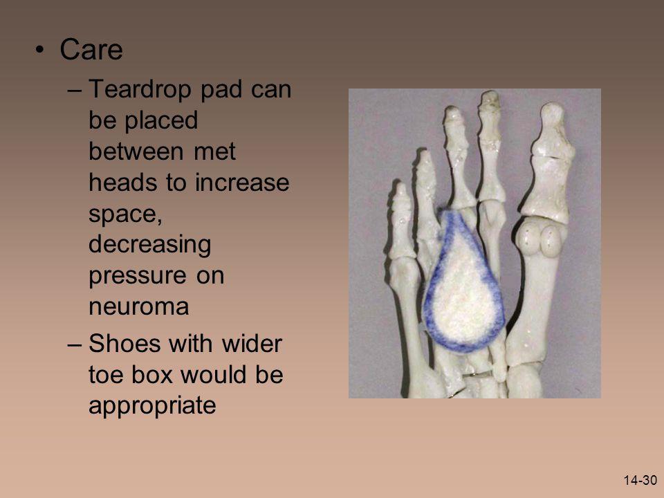 Care Teardrop pad can be placed between met heads to increase space, decreasing pressure on neuroma.