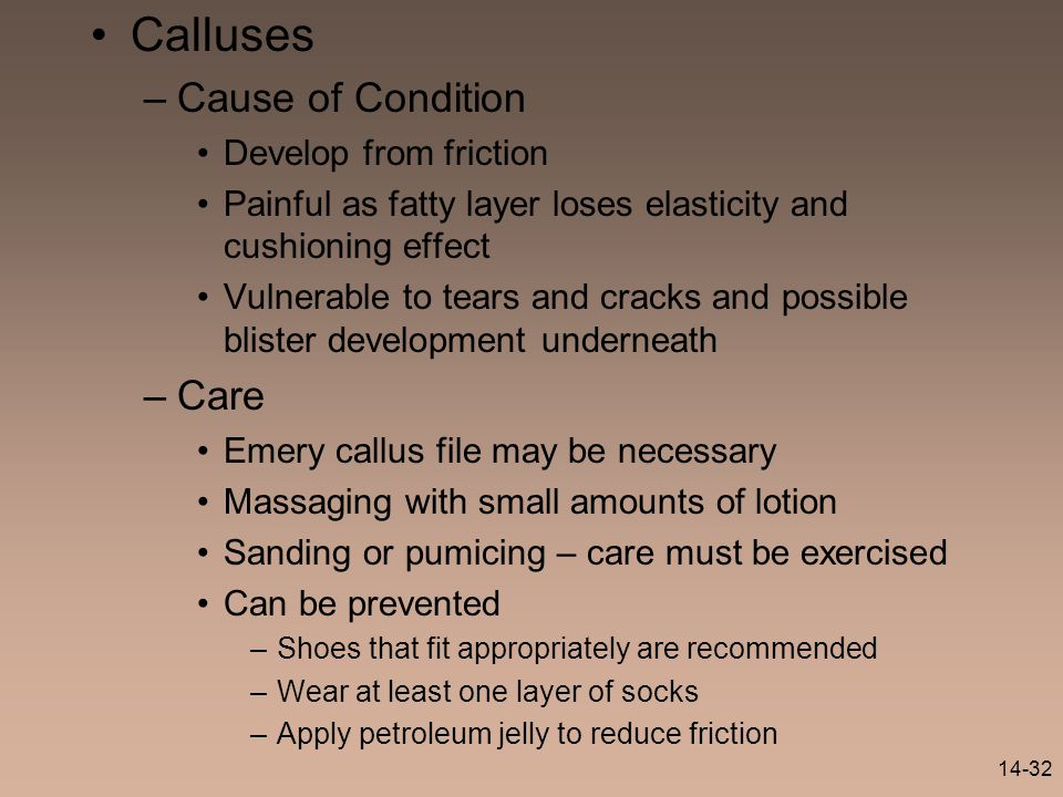Calluses Cause of Condition Care Develop from friction