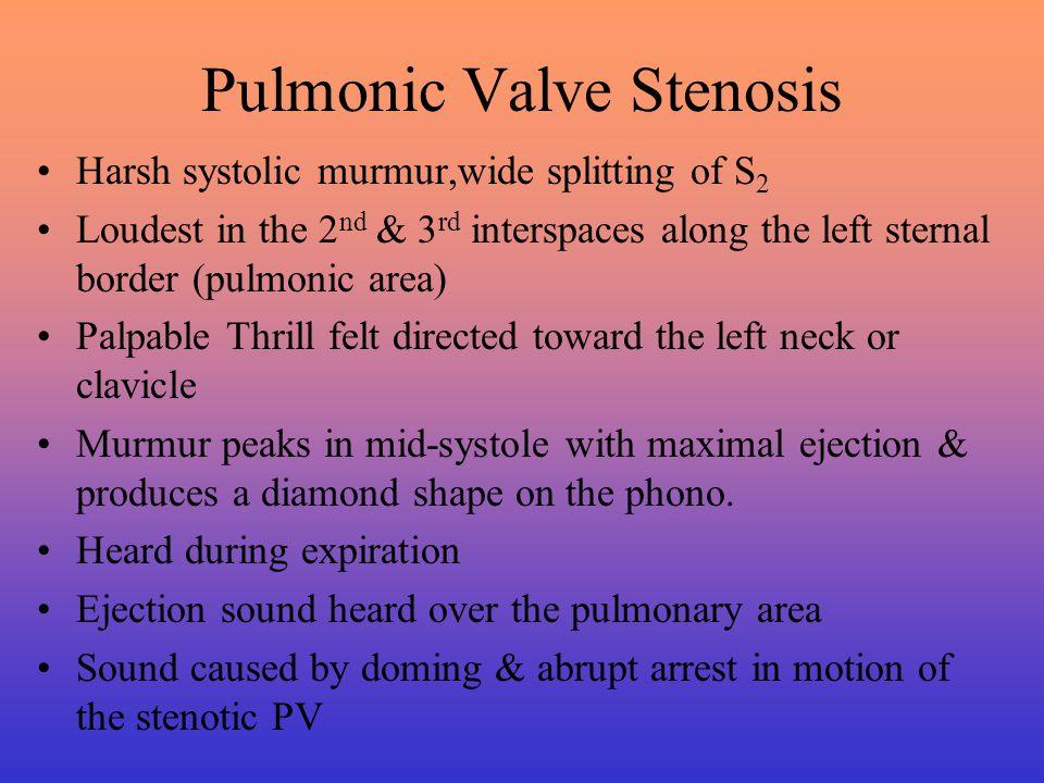 Pulmonic Valve Stenosis