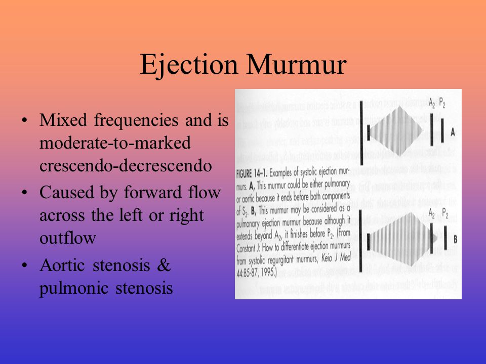 Ejection Murmur Mixed frequencies and is moderate-to-marked crescendo-decrescendo. Caused by forward flow across the left or right outflow.
