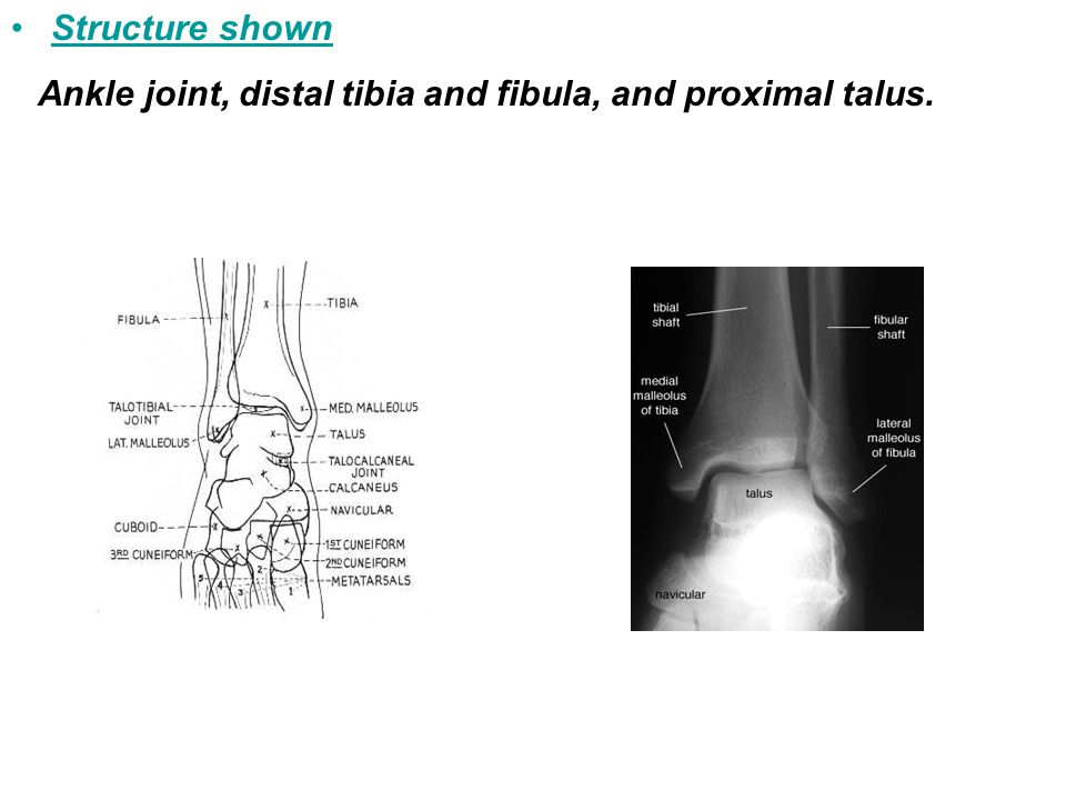 Ankle joint, distal tibia and fibula, and proximal talus.