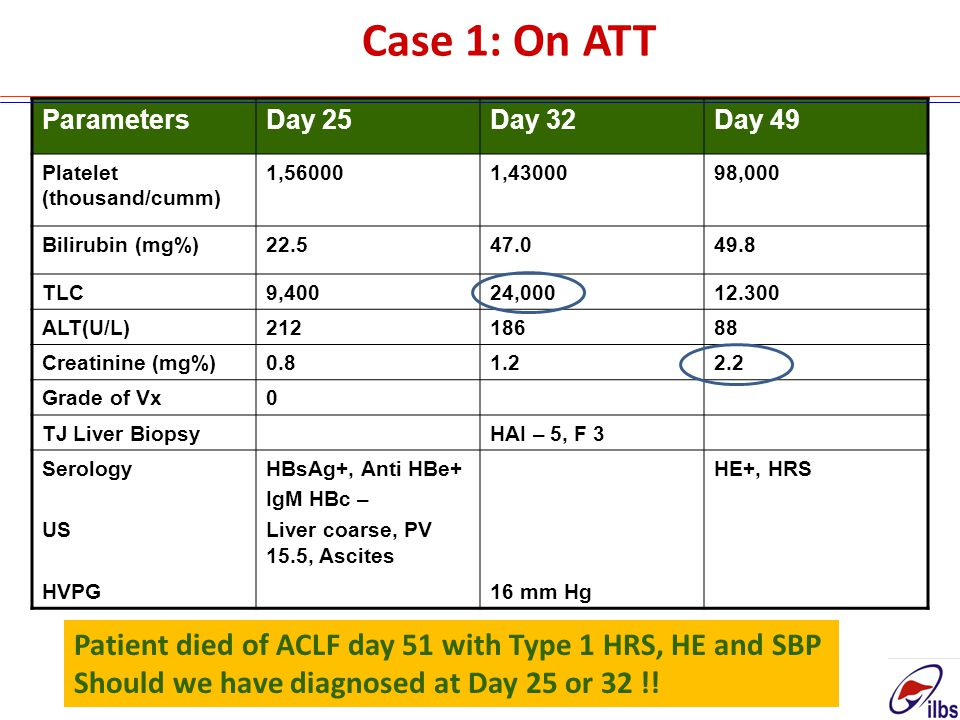 Case 1: On ATT Patient died of ACLF day 51 with Type 1 HRS, HE and SBP