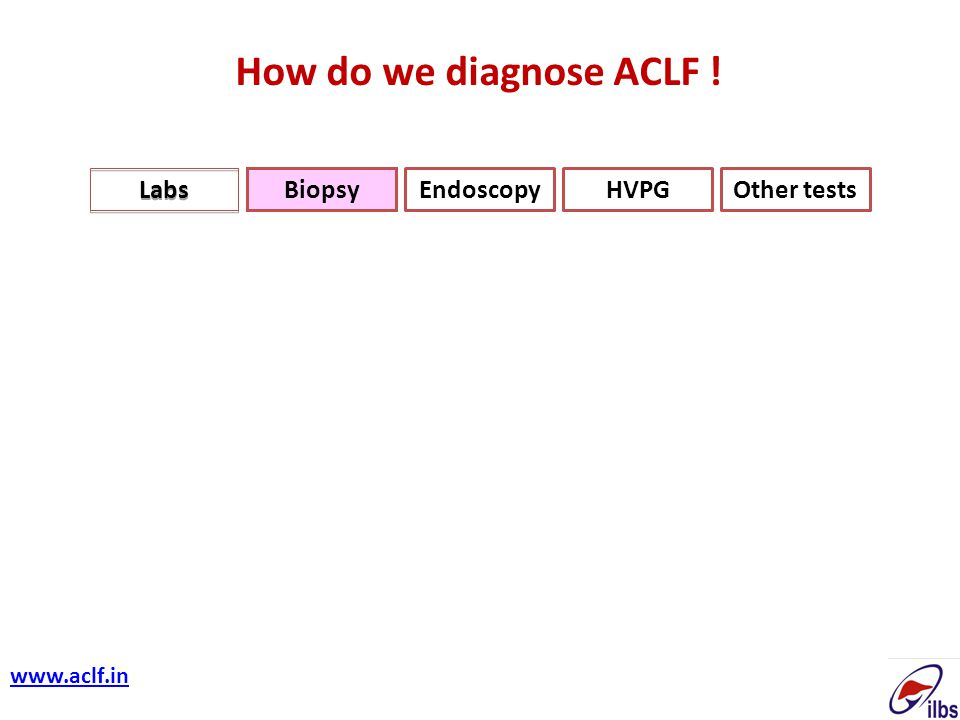 How do we diagnose ACLF ! Labs Biopsy Endoscopy HVPG Other tests