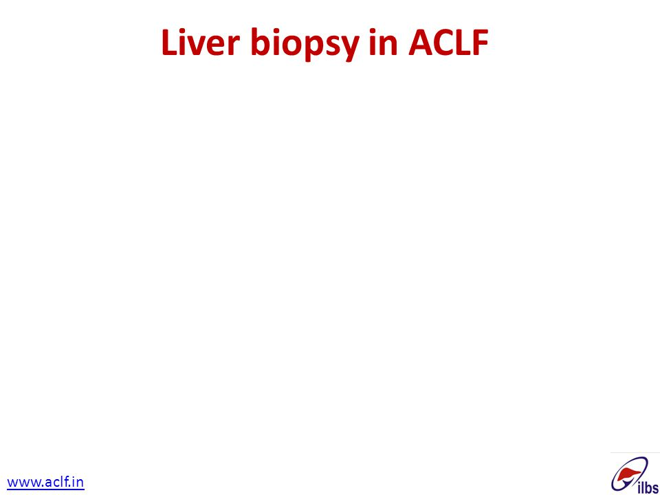 Liver biopsy in ACLF www.aclf.in