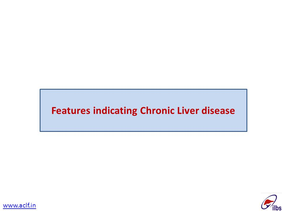 Features indicating Chronic Liver disease