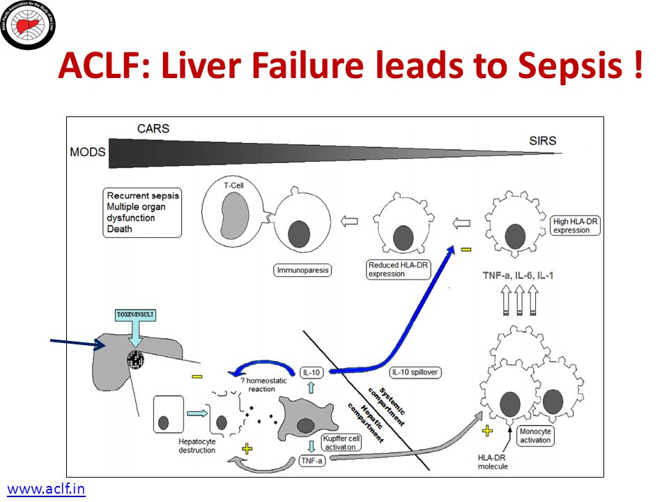 ACLF: Liver Failure leads to Sepsis !