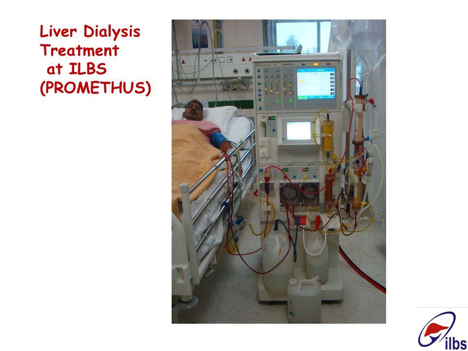 Liver Dialysis Treatment